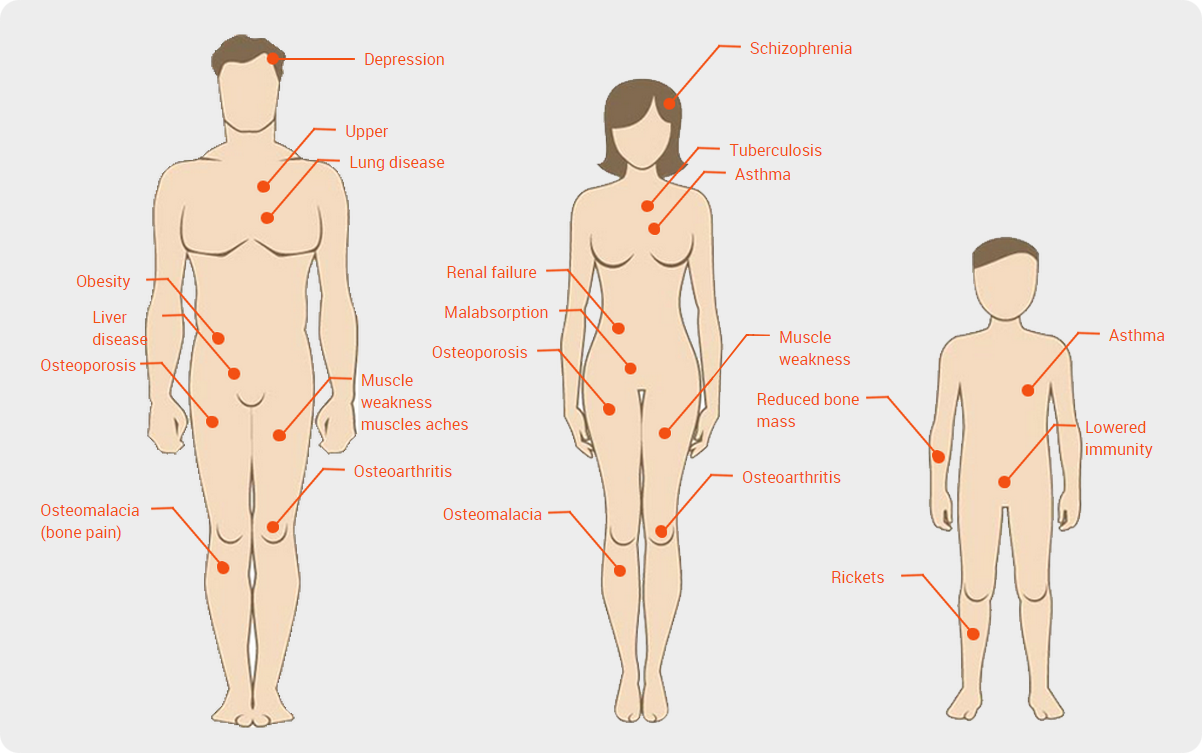 graphic relating to D&d Printable Spell Cards called Signs or symptoms of Vitamin D Absence - Vitamin D Expert