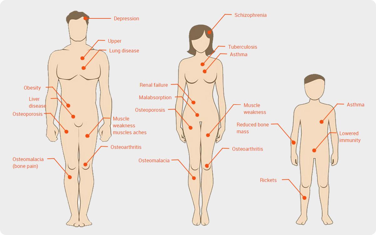 Symptoms of Vitamin D Deficiency - Vitamin D Guru